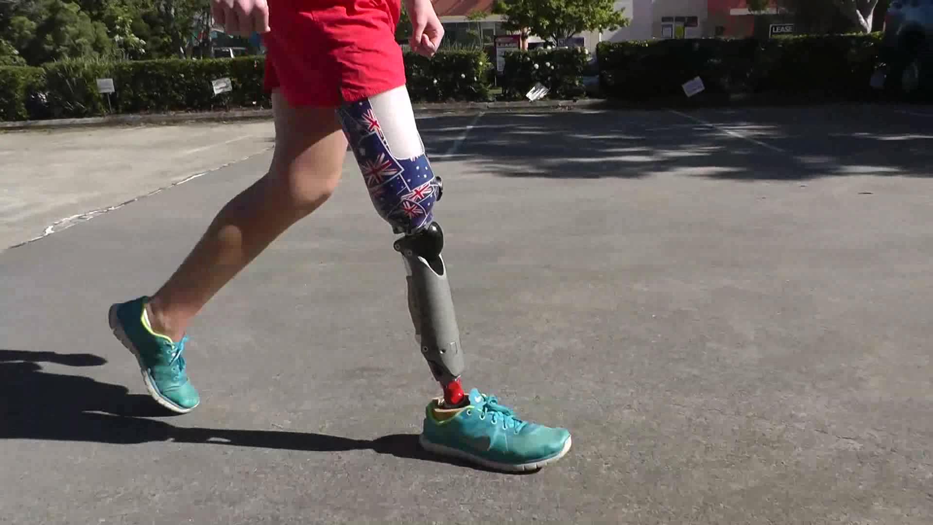 Prothesenkniegelenk VGK für Beinamputierte